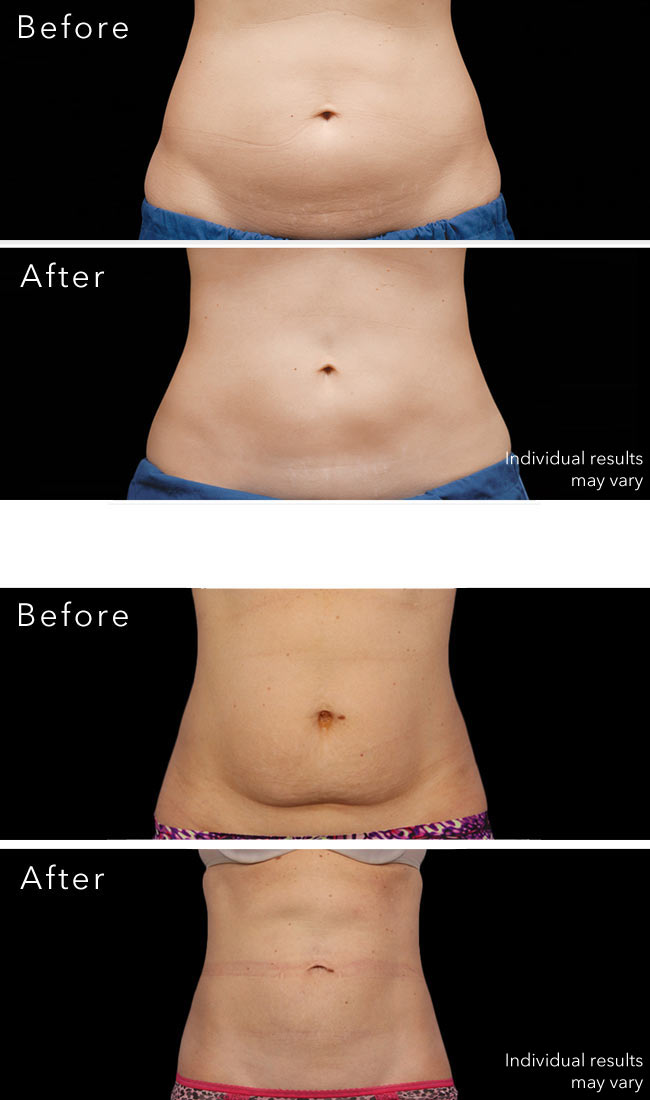 Coolsculpting nyc - before and after